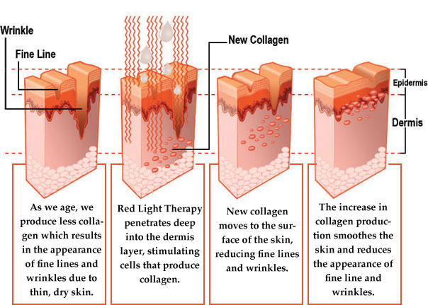 effects of red light1 Red Light Therapy