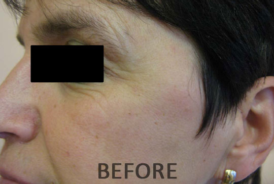 Red Light Collagen Therapy Before And After Lake Mary